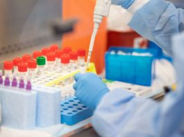 Covid: trattamento Lilly con anticorpi monoclonali riduce ricoveri e decessi