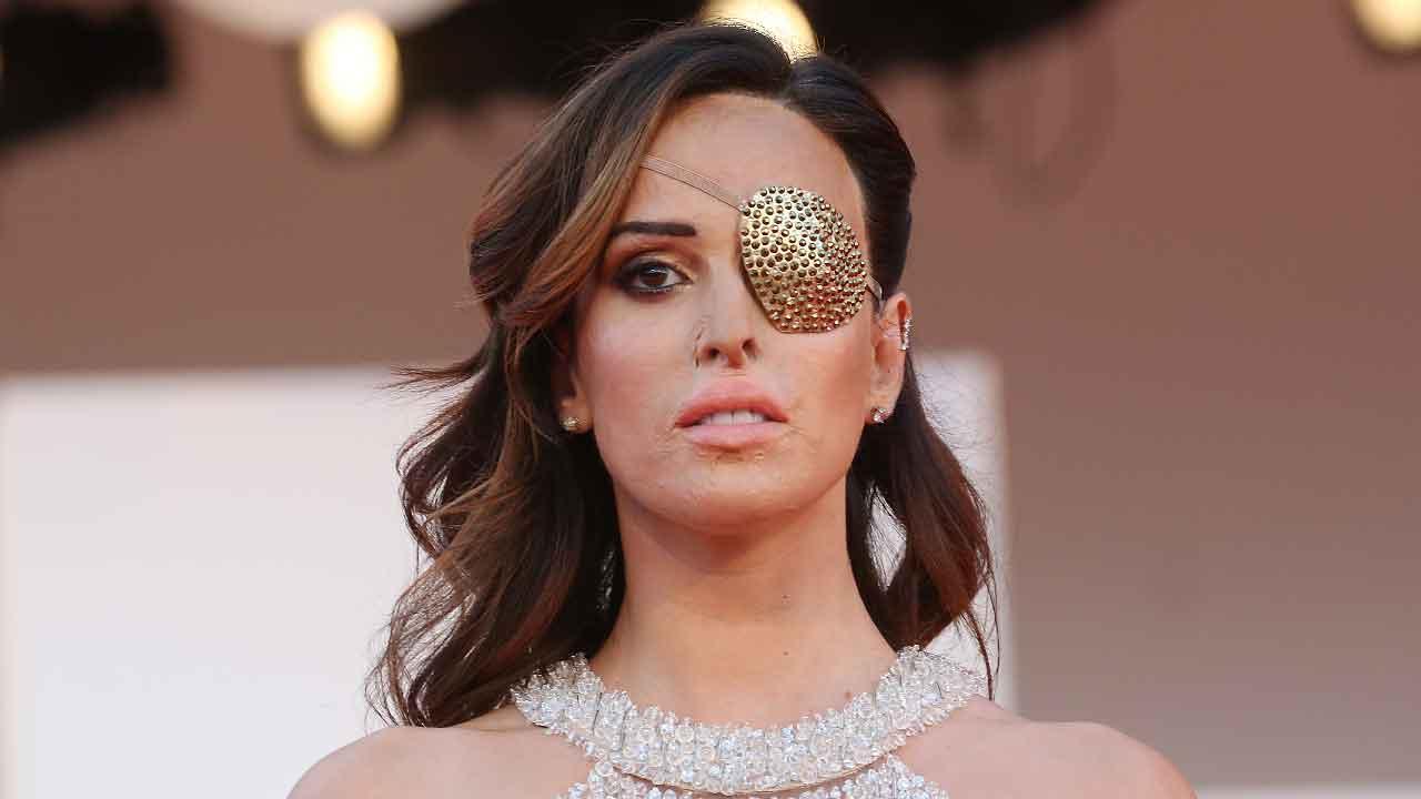 Gessica Notaro, chi è la donna che fu sfregiata dal suo ex fidanzato con l'acido (Getty Images)