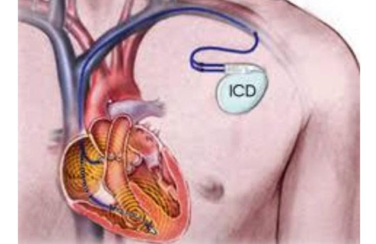 Screenshot Defibrillatore sottocutaneo