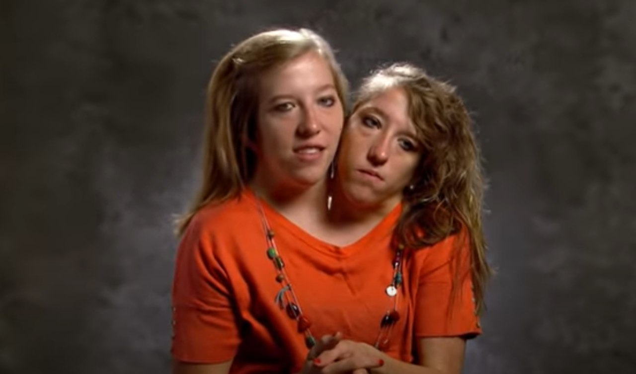 Abby e Brittany Hensel