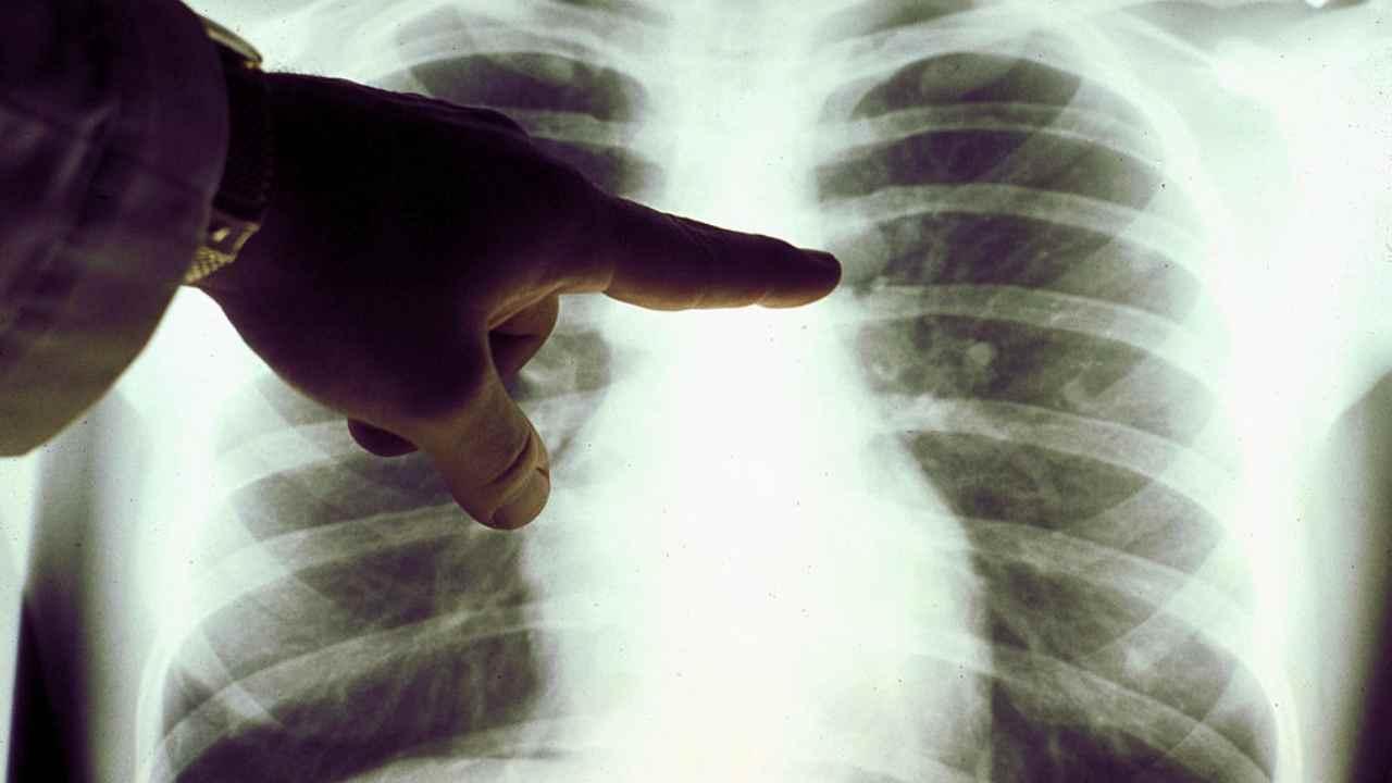 intelligenza artificiale scopre in anticipo il tumore al polmone